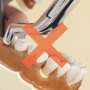 なるべく歯を抜かない治療